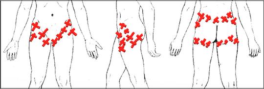 痛い 股関節 外側